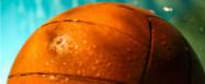 Eierstocktumor in Medizinballgröße